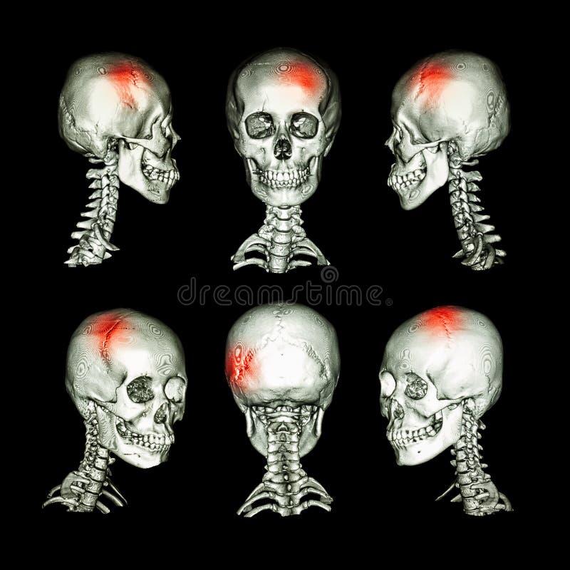 CT顶头和子宫颈脊椎的扫描和3D图象 为冲程,头骨破裂,神经学情况使用这个图象 皇族释放例证