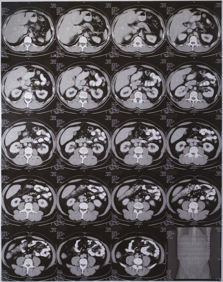 CT κοιλιών στοκ εικόνες με δικαίωμα ελεύθερης χρήσης