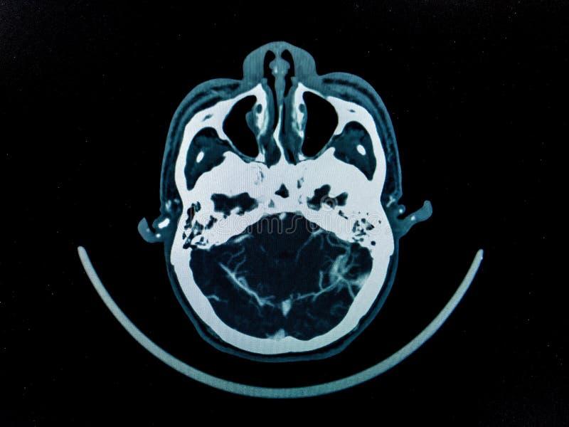 CT стоковые фото