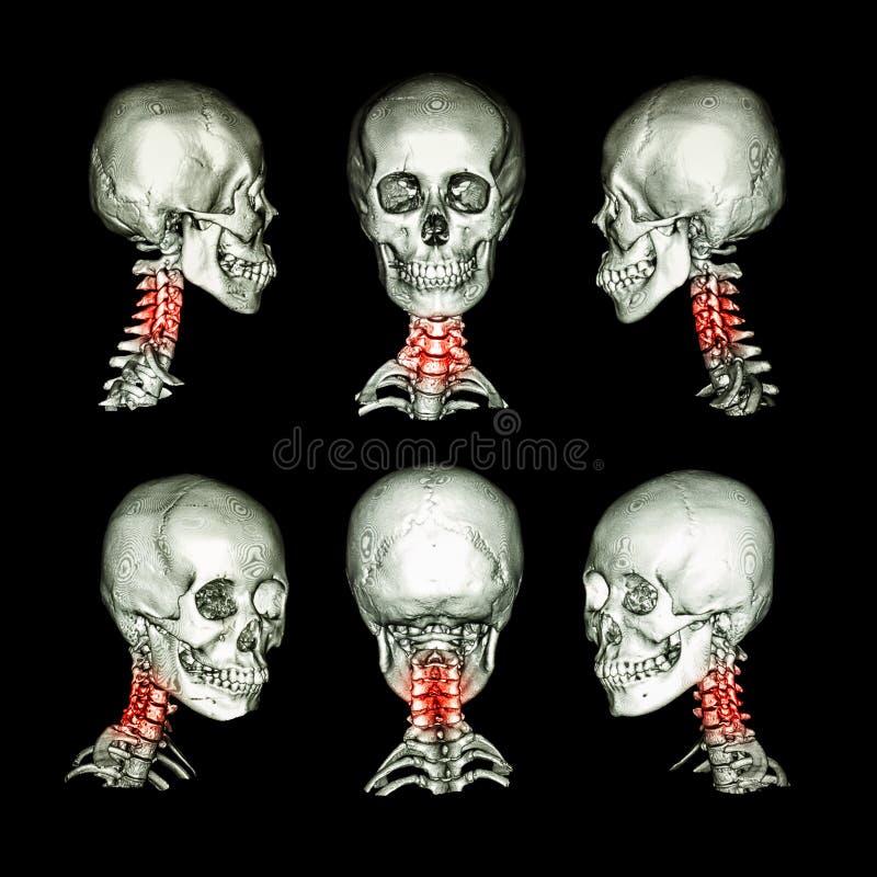 CT头骨和脖子的扫描和3D图象 为子宫颈椎关节强硬,脊椎前移, spondylitis,脊椎创伤使用这个图象 免版税库存照片