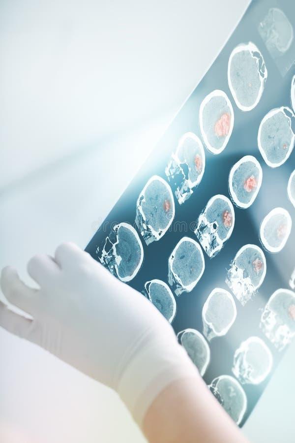CT aftasten in het heldere licht van het medische ziekenhuis stock foto