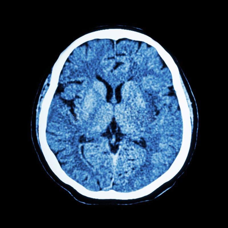 CT aftasten van hersenen: toon normale menselijke 's-hersenen (KATTENaftasten) royalty-vrije stock afbeeldingen