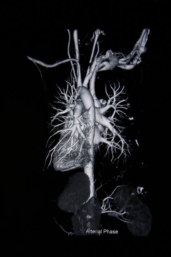 Ct aftastenangiogram (neem foto van filmröntgenstraal) stock foto's