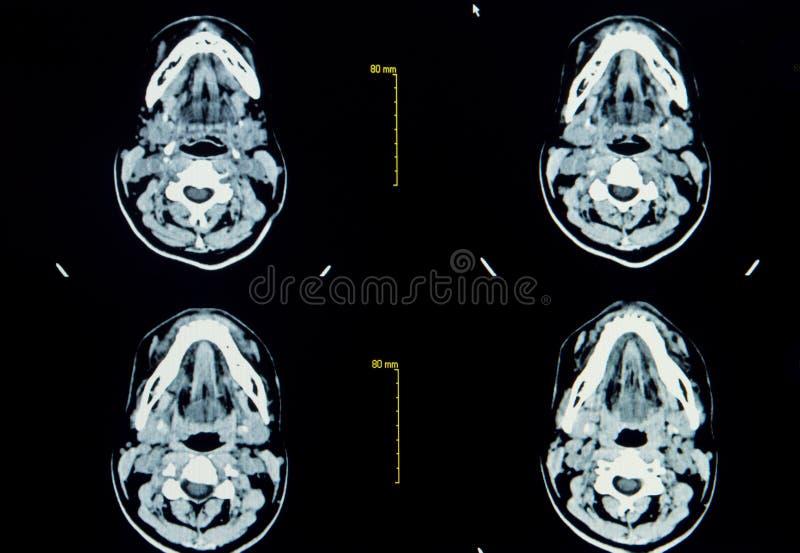 CT aftastenbeeld van hersenen royalty-vrije stock afbeeldingen