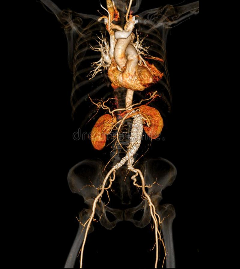 CT angiographphy артерий во всем теле иллюстрация штока