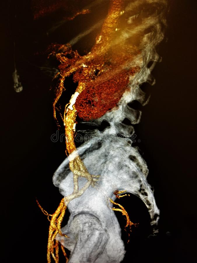 Ct angiography lateral view lumbar pelvis. There is lateral view of computer angio tomography , which shows vessels of lumbar and pelvic part of the body, in stock images