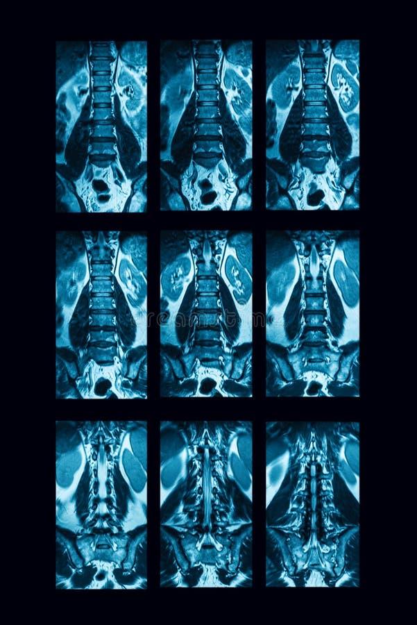 CT-bildläsning av den lumbala ryggen, fall av lumbal spondylosis arkivfoton