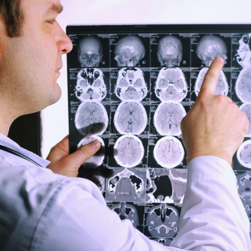 Ct-bildläsning av hjärnan hjärnbildstråle x Doktor som ser roentgenogramen av en datortomography på en negatoscope royaltyfri bild