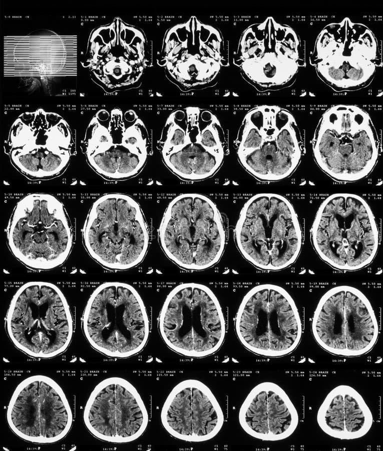 Ct-bildläsning av hjärnan med kontrastmassmedia arkivbilder