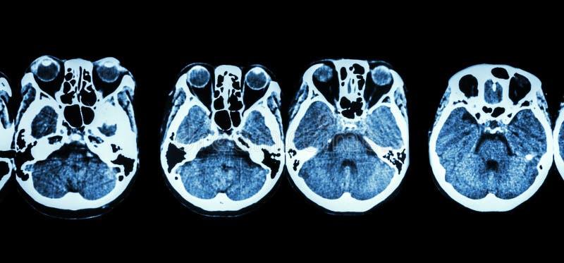 Ct-bildläsning av hjärnan och grund av skallen (showstrukturen av ögat, den ethmoid bihålan, lillhjärnan, storhjärnan, etc.) fotografering för bildbyråer