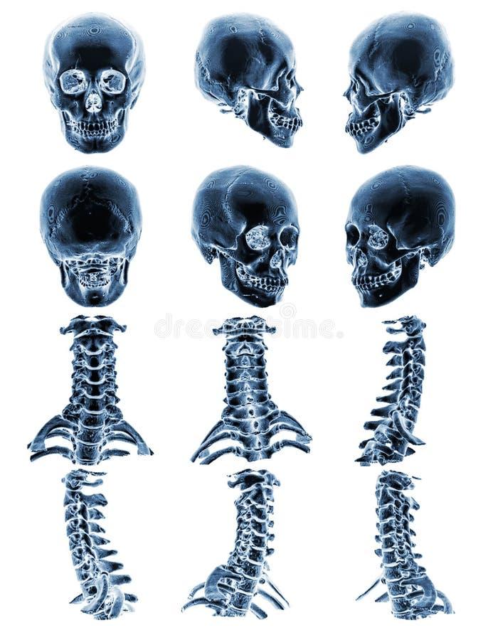 Ct-bildläsning & x28; Beräknad tomography & x29; med den normala mänskliga skallen för grafisk show 3D och den cervikala ryggen arkivbild