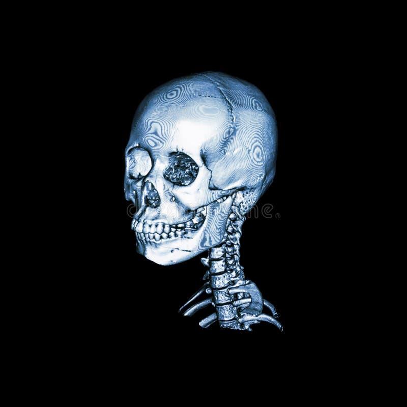 Ct-bildläsning med bilden 3D av den normala mänskliga skallen och den cervikala ryggen Sned sikt royaltyfri illustrationer