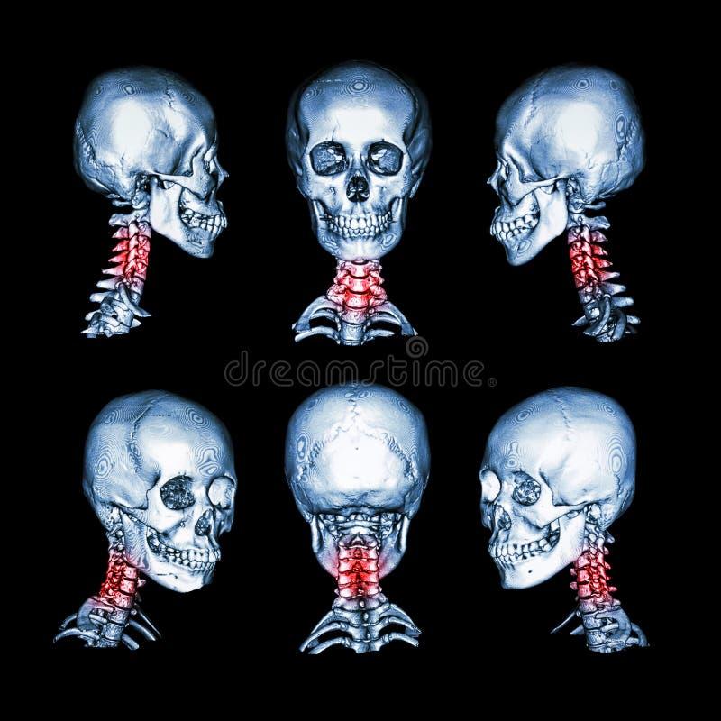 Ct-bildläsning och bild 3D av skallen och halsen Använd denna bild för cervikal spondylosis, spondylolisthesis, spondylitisen, in royaltyfri fotografi