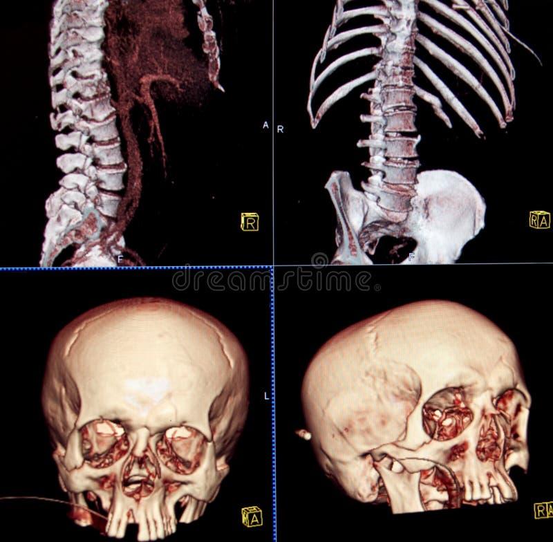 CT delle ossa della testa e del corpo fotografia stock libera da diritti