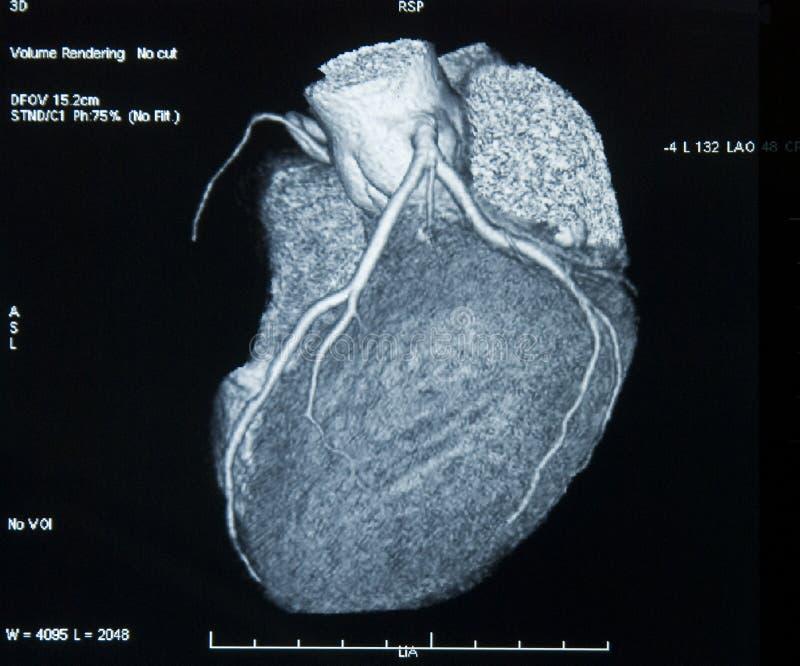 CT-Faça a varredura do coração foto de stock