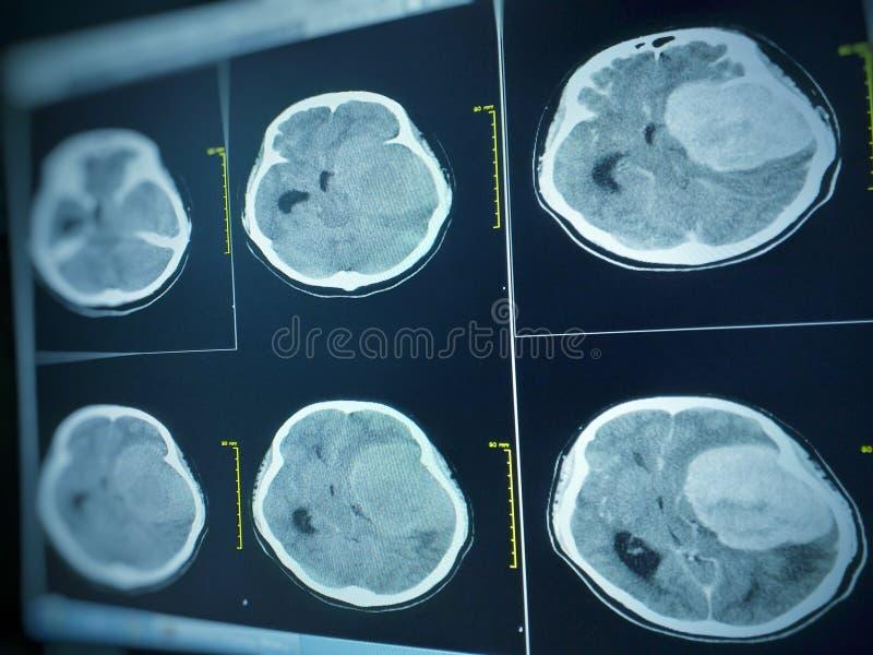 CT Hersenenindruk zeven cm extra-asmassa met stongverhoging en massaeffect aan linker hersenhemisfeer stock afbeelding