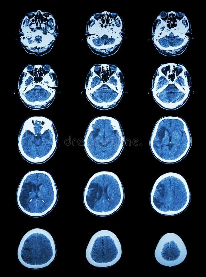 CT het aftasten (gegevens verwerkte tomografie) van hersenen toont herseninfarct stock afbeelding