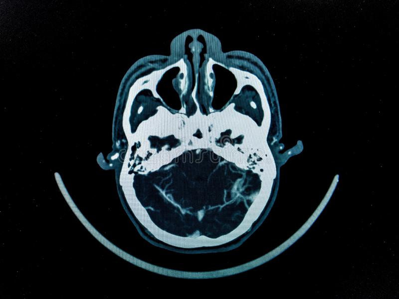 CT zdjęcia stock