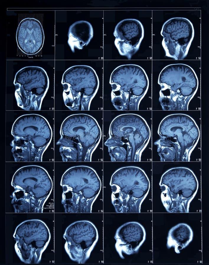 CT obraz cyfrowy dorosła istota ludzka ilustracja wektor