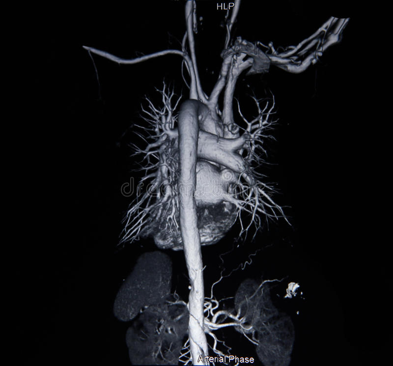 Ct scan angiogram (take photo from film x-ray). Ct scan angiogram 3D (take photo from film x-ray stock image