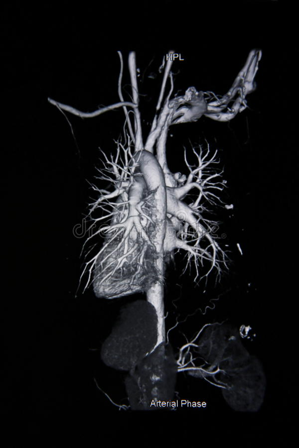 Ct scan angiogram (take photo from film x-ray). Ct scan angiogram 3D (take photo from film x-ray stock photos