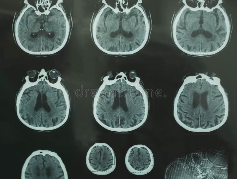 CT scan of brain royalty free stock photos