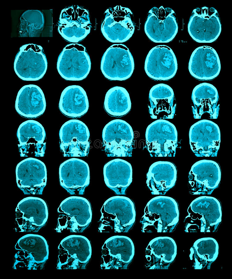 CT scan of the brain. Hemorrhagic stroke. Information for professionals royalty free stock photos