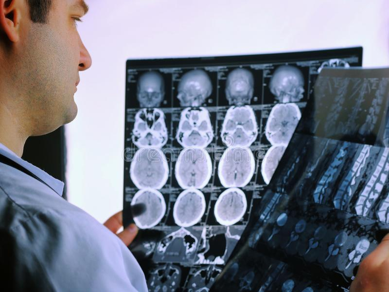 CT scan of the brain. MRI of the brain. Doctor, looking at the roentgenogram of a computer tomography on a negatoscope.  stock images
