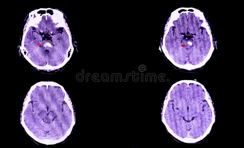 Pontine hemorrhage. A CT scan of the brain of a patient with intracranial hemorrhage. The lesion is in the pons and extends to the cerebellum stock illustration