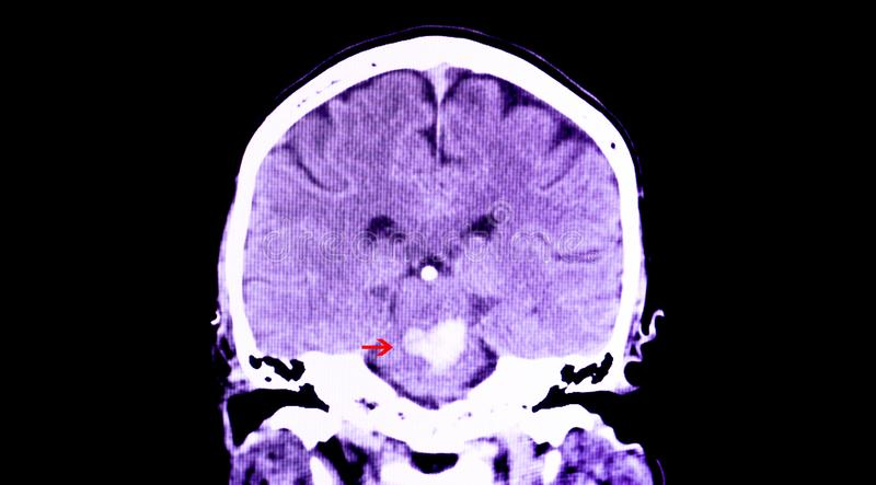 Pontine hemorrhge. A CT scan of the brain of a patient with intracranial hemorrhage. The lesion is in the pons and extends to the cerebellum vector illustration