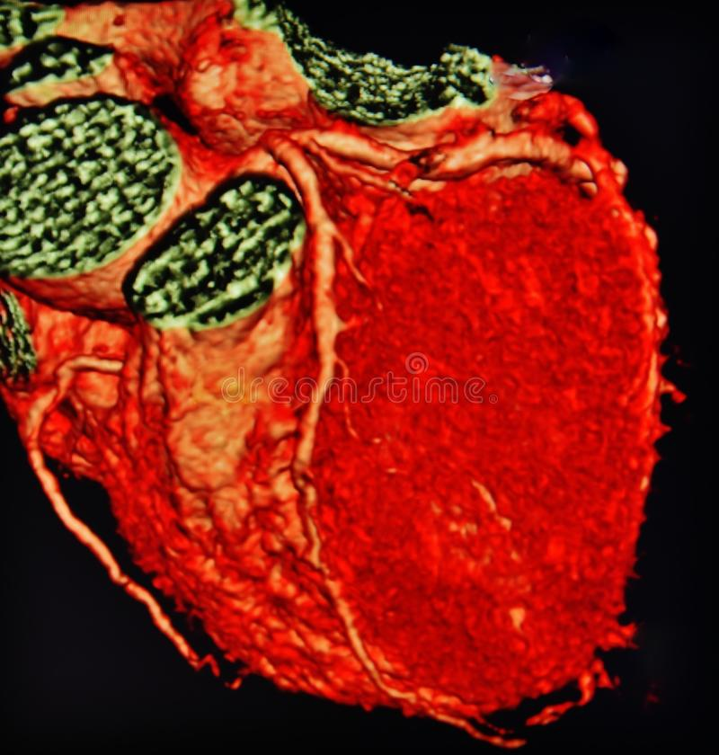 Ct scan 3d heart angiography colorful. There is 3D CT angiography of the heart , with anatomical elements of the heart as vessels ,walls and different structures royalty free stock photos