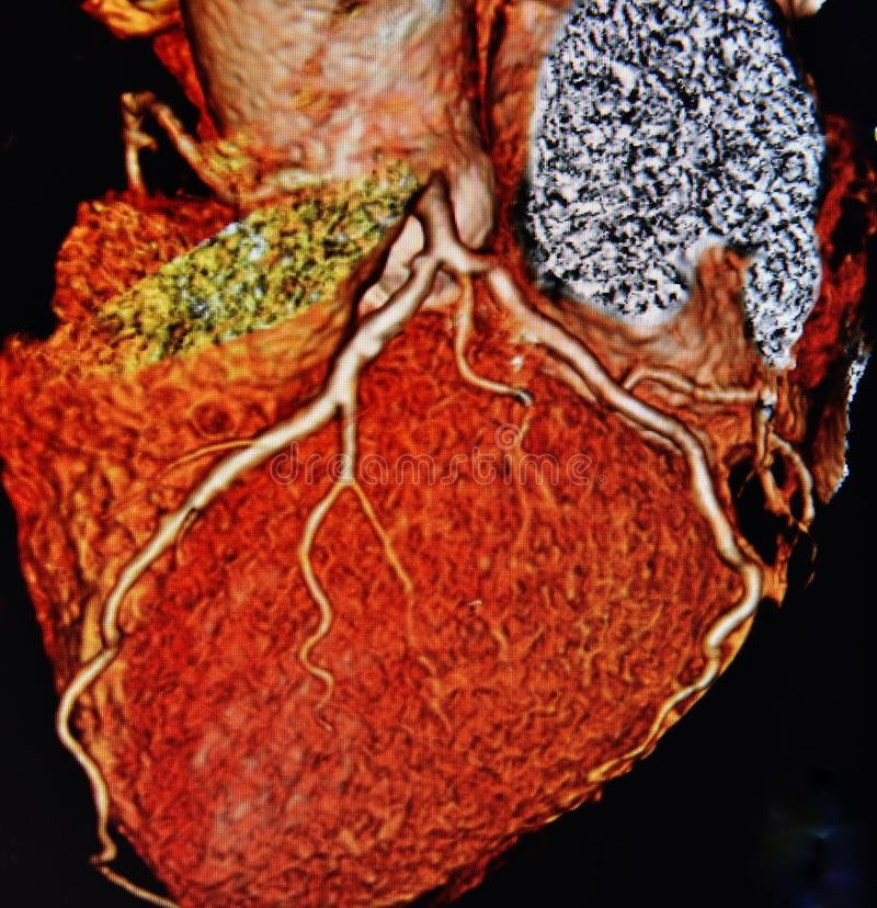 Ct scan 3d heart angiography colorful. There is 3D CT angiography of the heart , with anatomical elements of the heart as vessels ,walls and different structures stock photography