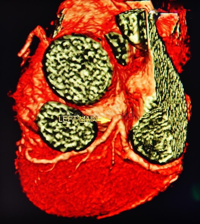 Ct Scan 3d Heart Angiography Colorful Stock Illustration ...