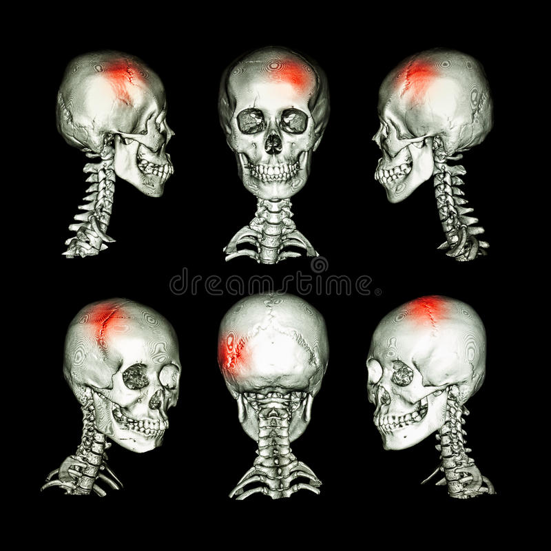 CT scan and 3D image of head and cervical spine . Use this image for stroke , skull fracture , neurological condition . royalty free illustration