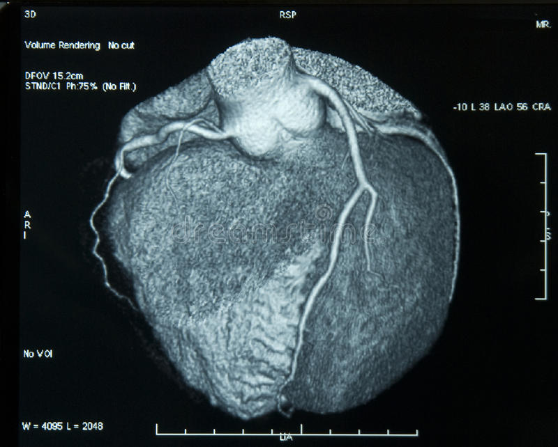 CT-Scan Heart royalty free stock images