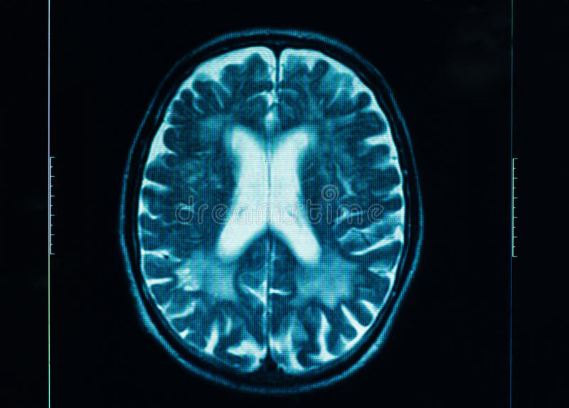 Ct Scan Of The Human Brain Royalty Free Stock Photo