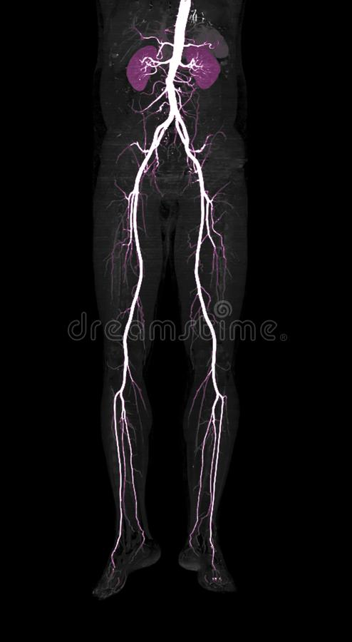 CTA股动脉脱离三维渲染图像 库存照片