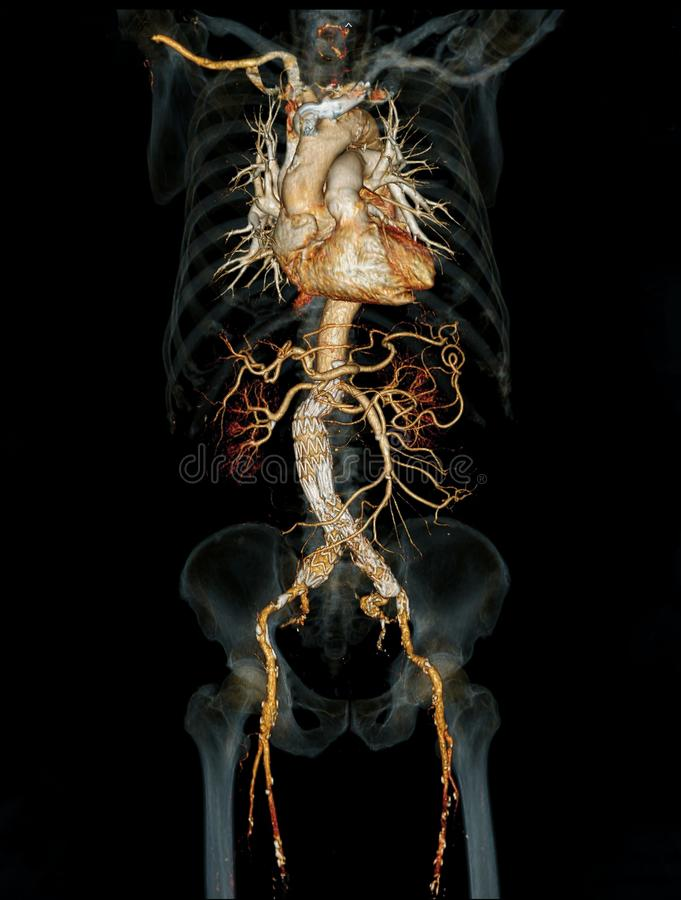 CTA abdominal aorta 3D rendering image. CTA abdominal aorta 3D rendering image  with stent graft on transparent skeletal stock illustration
