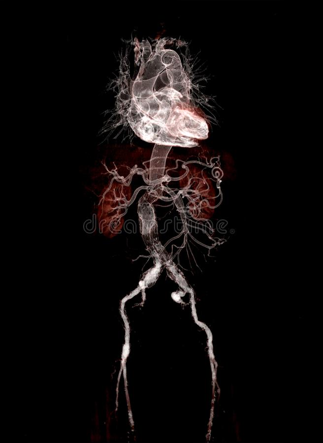 CTA abdominal aorta 3D rendering image. With stent graft on transparent skeletal vector illustration