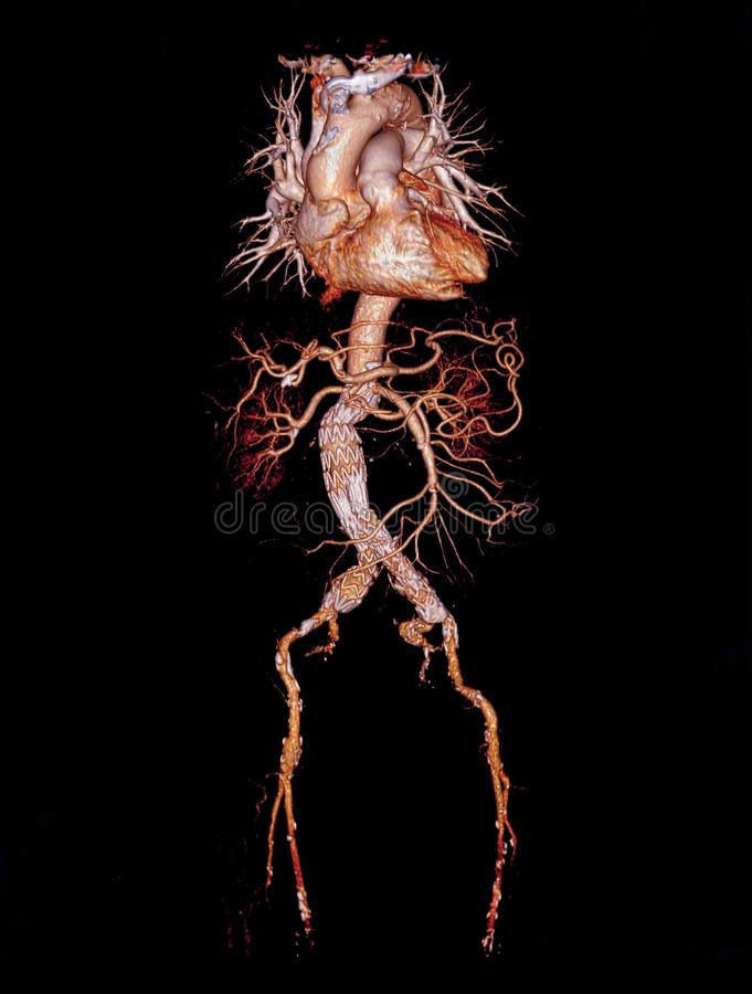 CTA abdominal aorta 3D rendering image. With stent graft on transparent skeletal royalty free illustration