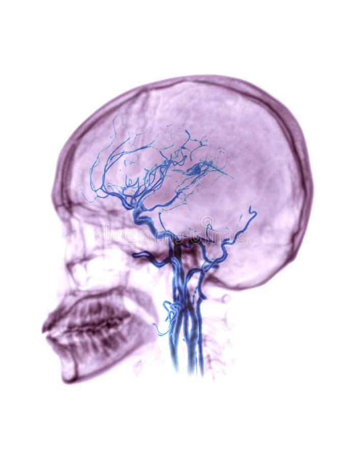 CTA brain or CT angiography of the brain . CTA brain or CT angiography of the brain 3D Rendering image fusion with skull lateral view  showing position common royalty free stock photos