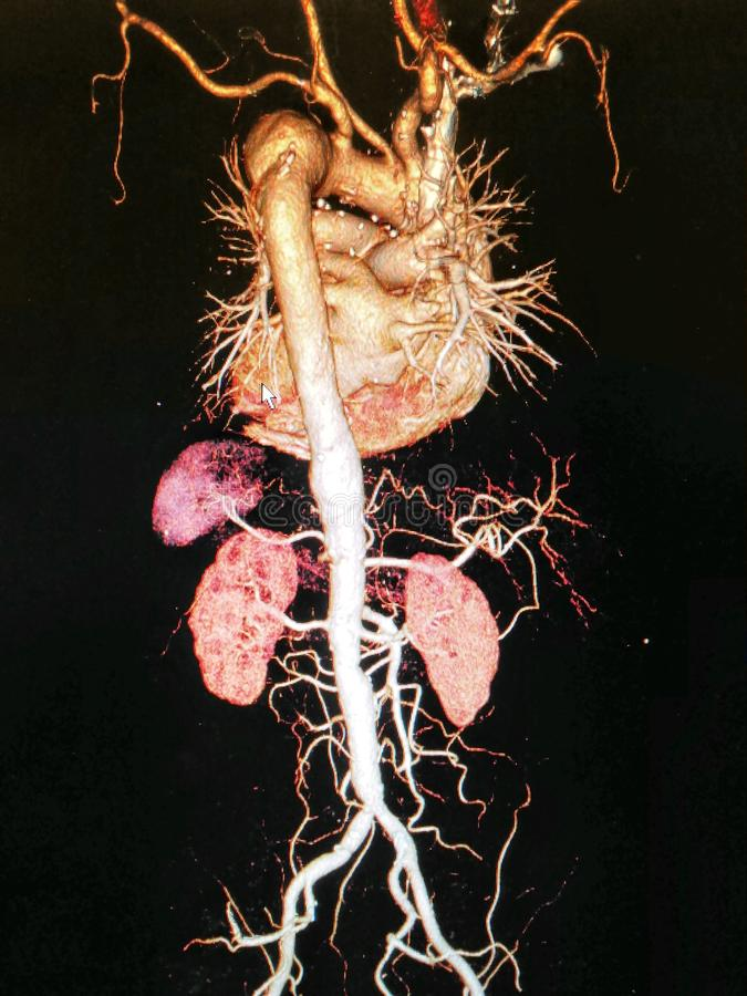 CTA computed tomography angiographphy3D take photo from film x-ray of whole aorta. Computed tomography angiography (CT Angiography or CTA) of abdominal royalty free stock photos