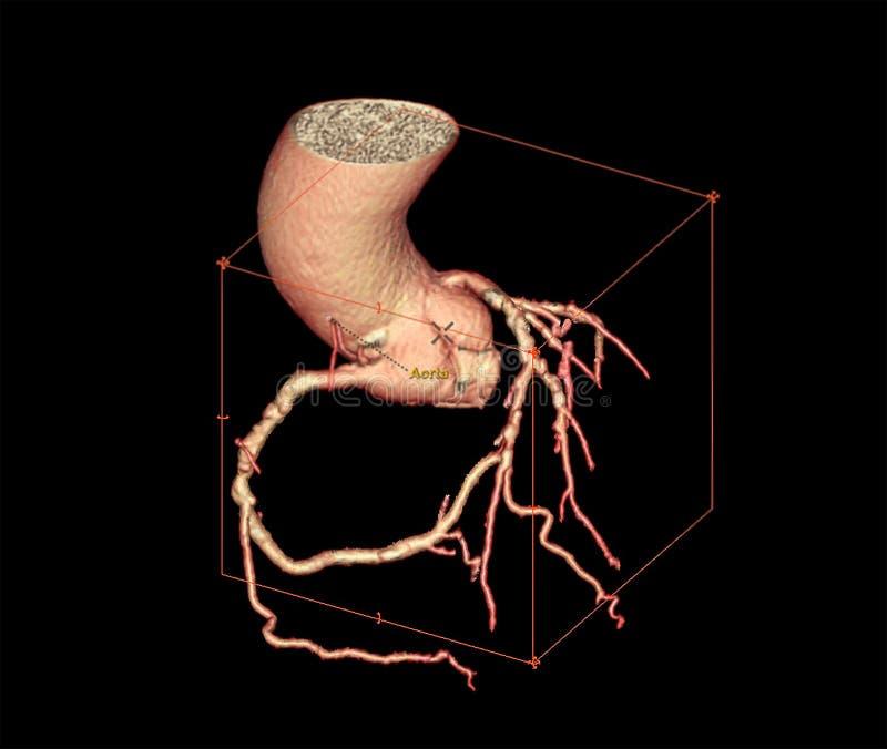 CTA Coronary artery  3D rendering image. Or coronary tree . CT angiography for diagnosis of vessel coronary artery stenosis stock illustration