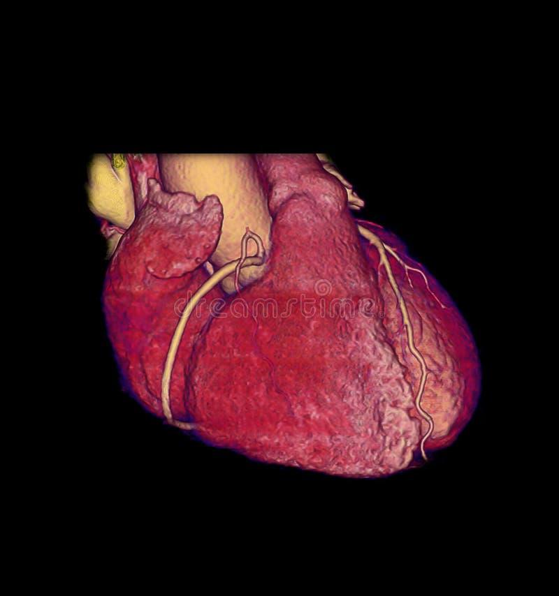 CTA Coronary artery  3D rendering image . CTA Coronary artery  3D rendering image for finding coronary artery disease stock illustration