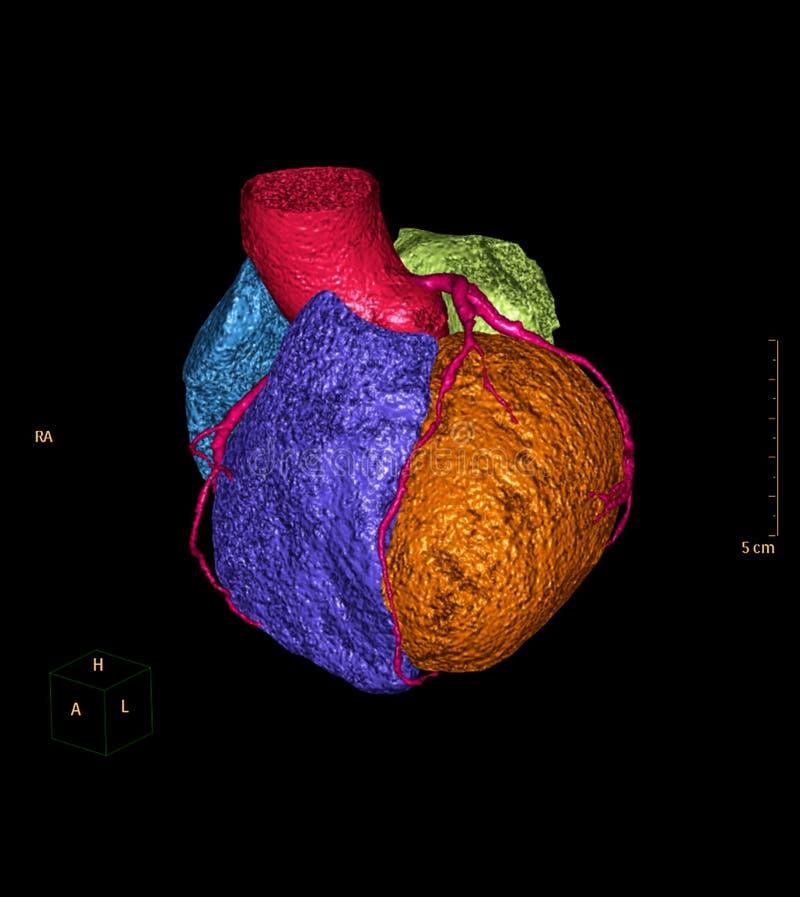 CTA Coronary artery 3D rendering image. For detect coronary artery disease stock illustration