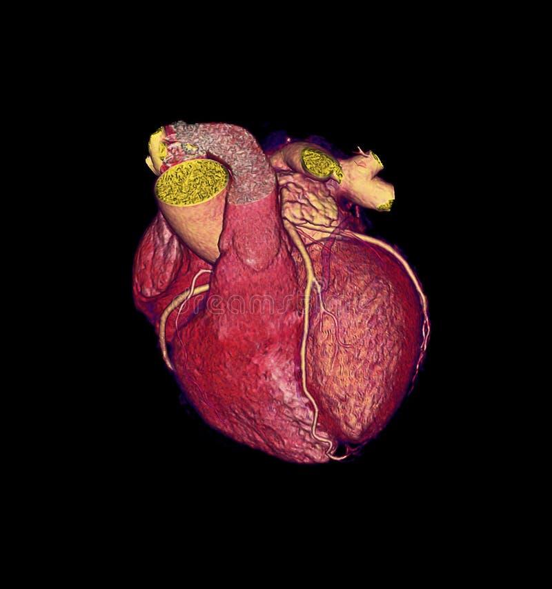 CTA Coronary artery  3D rendering image. CTA Coronary artery  3D rendering image for finding coronary artery disease royalty free illustration