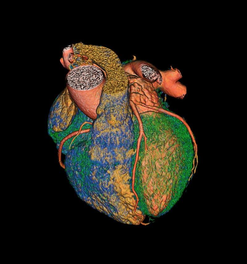 CTA Coronary artery  3D rendering image. CTA Coronary artery  3D rendering image for finding coronary artery disease stock illustration