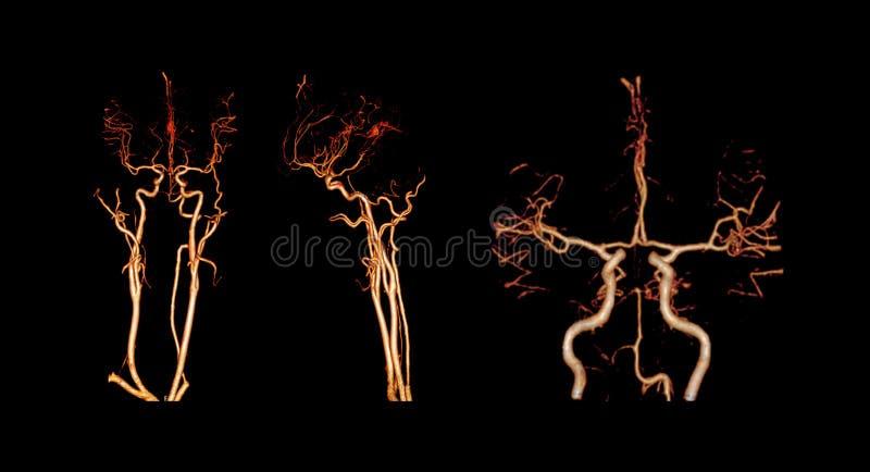 CTA-HERSENENos CT angiografie van het hersenen 3D Teruggevende beeld stock foto's