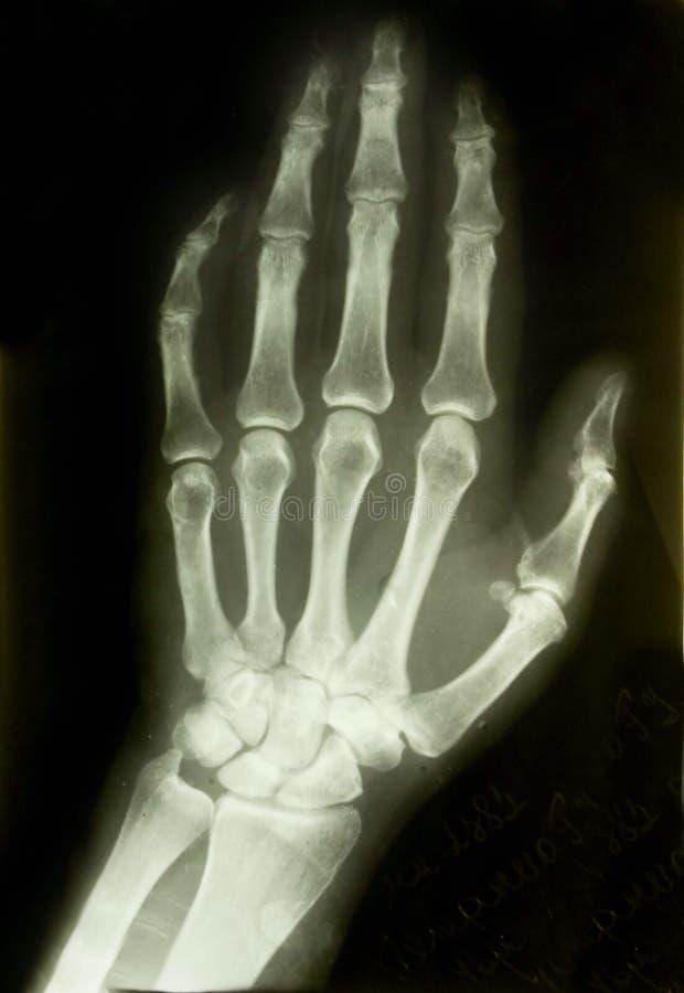 Cuadro de la radiografía fotografía de archivo