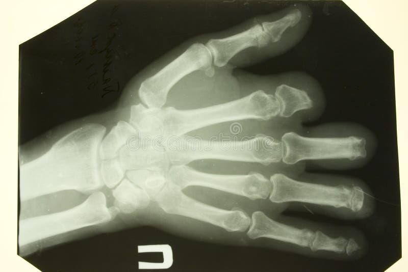 Cuadro delantero de la radiografía de las palmas foto de archivo